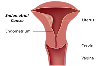 Best Endometrial Cancer Doctor in delhi