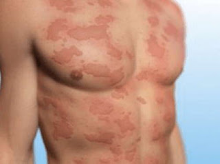 An urticaria rash on the patient's torso is one of the classic signs of hepatitis C rash pictures