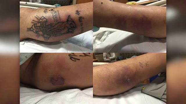 Texas man dies after swimming with new tattoo