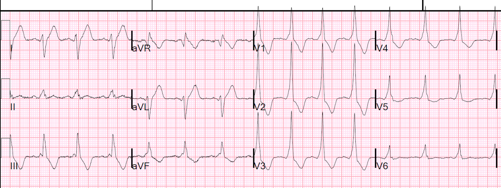 dr smith s ecg blog a large r wave in lead v1 and why is the pr