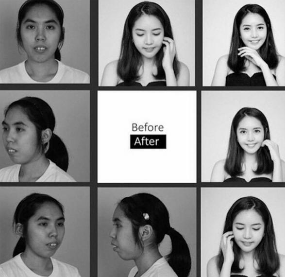 Wajah Wanita Thai Sebelum Dan Selepas Pembedahan Plastik Ini Buat Ramai Terpegun