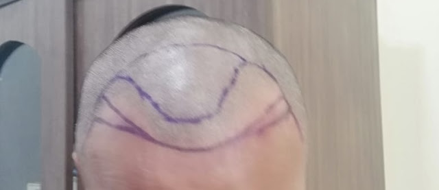 Drawing to address the male bald pattern