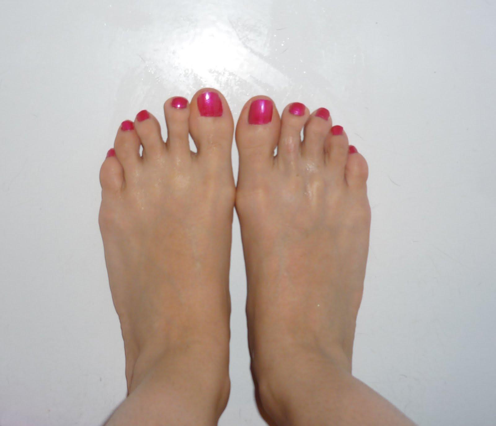 My Toe Shortening Surgery And Hammertoe (Hammer Toe