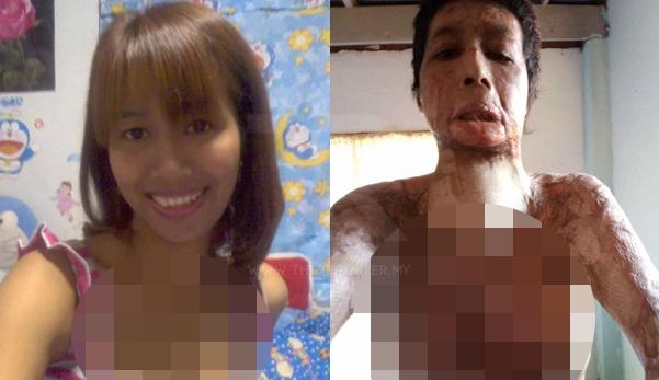 Muat Naik Gambar 'selfie' Di Facebook, Suami Bakar Isteri Dengan Petrol