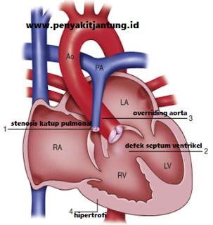 Kode Diagnosa Penyakit Jantung Bawaan Tetralogy of Fallot