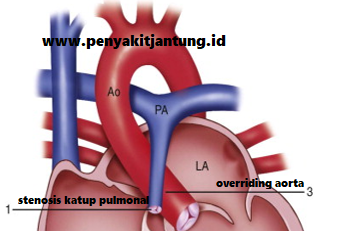 Kode Diagnosa Penyakit Jantung Bawaan Tetralogy of Fallot (ToF)