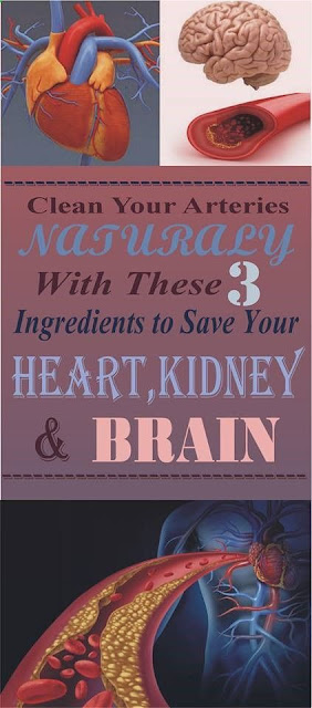 CLEAN YOUR ARTERIES NATURALLY WITH THESE 3 INGREDIENTS TO SAVE YOUR HEART, KIDNEYS AND BRAIN