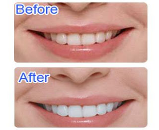 Whitelight Teeth Pemutih Gigi Whitelight Teeth Whitening Review