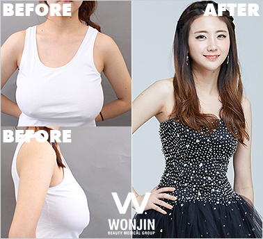 Breast Surgery Wonjin, Say Goodbye To Painful and Heavy Breast