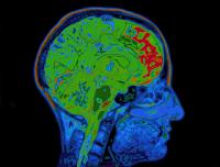 Estudio: Conducta psicópata asociada a cambios en la corteza prefrontal