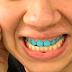Cresce a tendência bizarra de colocar esmalte colorido nos dentes