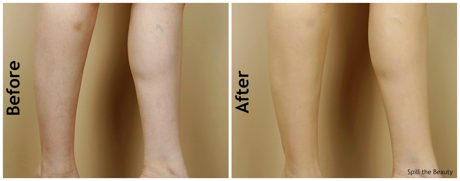 dermablend leg and body makeup buildable liquid body foundation review swatches before and after fair ivory 10n