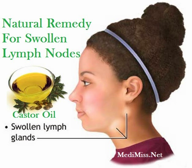 Natural Essential Oil Remedies For Swollen Glands Neck