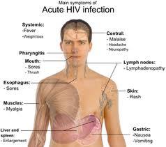 Mendeteksi Gejala Awal HIV dan AIDS