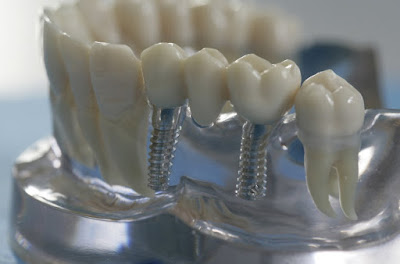 Зубные импланты на 3D принтере в Волгограде