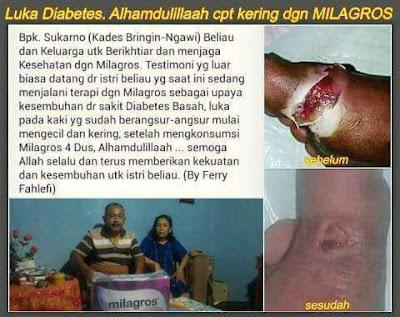 √ Harga Milagros di Pinang Ranti ⭐ ✅ WhatsApp 0813 2757 0786