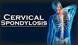 ঘাড়ের সার্ভাইক্যাল স্পনডাইলোসিস কি? How to treat cervical spondylosis