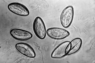 jaja owsików pod mikroskopem