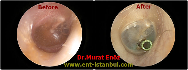 Indiciations of Ventilation Tube Operation - Ear Ventilation Tube Operation - Grommet Insertion Animation - Ventilation Tube (Grommet) Insertion Video - Ear Ventilation Tube Insertion in Istanbul - Ear Tube Insertion in Istanbul - Ear Ventilation Tube Insertion in Turkey