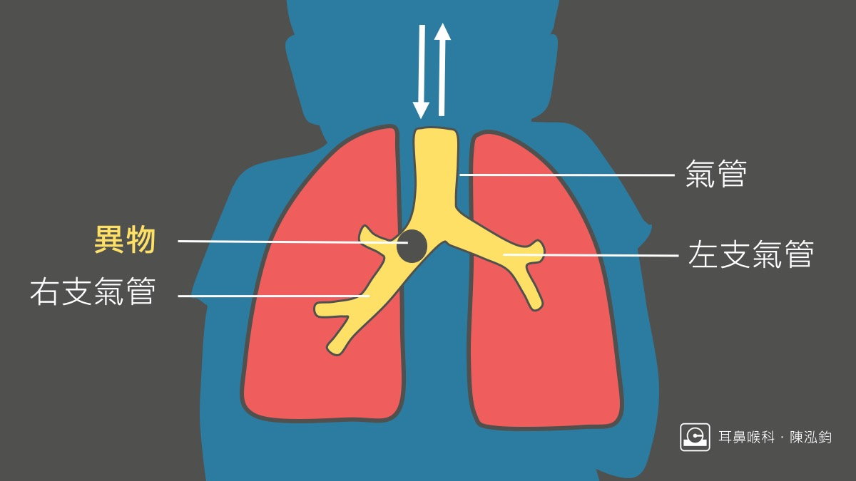陳泓鈞醫師|新竹耳鼻喉專科推薦: 要命的花生!您一定要小心的呼吸道異物(真實案例圖)