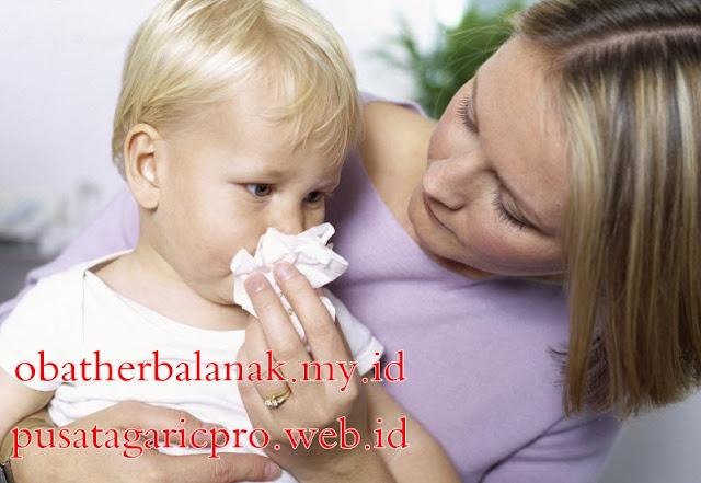 Cara Mengatasi Sinusitis Secara Aman dan Efektif