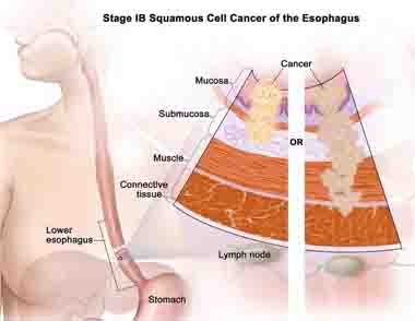 Brief Information on Stage 4 Esophageal Cancer