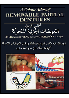 http://asnan-doctors.blogspot.com/2016/06/removable-partialdentures-ar.html