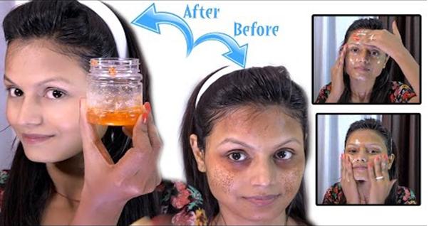 Inilah Cara Paling Mutahir Menghilangkan Flak ( Bekas ) Jerawat, Tanpa Menggunakan Masker Harga Jutaan Rupiah !!