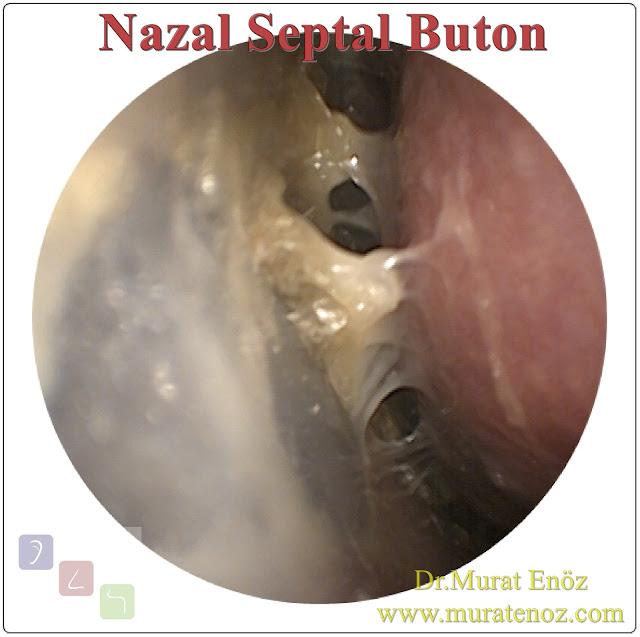 Septal buton uygulaması - Silikon septal buton - Nazal septal buton nedir? - Septum perforasyonu zararları - Burun duvarında delik için septal buton uygulaması - Septum perforasyonu olanlar - Nazal septumun perforasyonu - Septal buton endikasyonları - Septal buton kontrendikasyonları - Septal buton nasıl takılır? - Septal Buton uygulaması sonrası yapılması gerekenler - Septal Buton uygulaması sonrası hasta bakımı - Septal buton ne zaman çıkarılmalıdır?- Septal buton uygulaması riskleri - Septal buton uygulamasının zararları