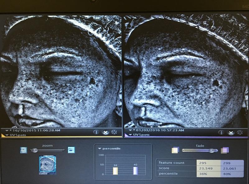 singapore aesthetics eha clinic visia complexion analysis review