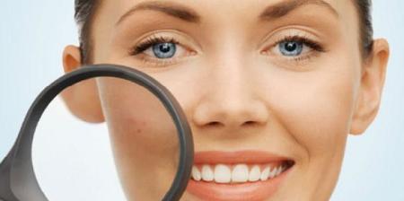 Tips alami hilangkan flek hitam di wajah