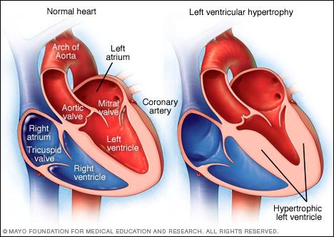 LV (Left Ventricular) Hypertrophy