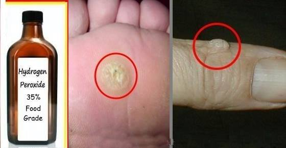 How to Easily Remove Warts And Skin Tags With Hydrogen Peroxide