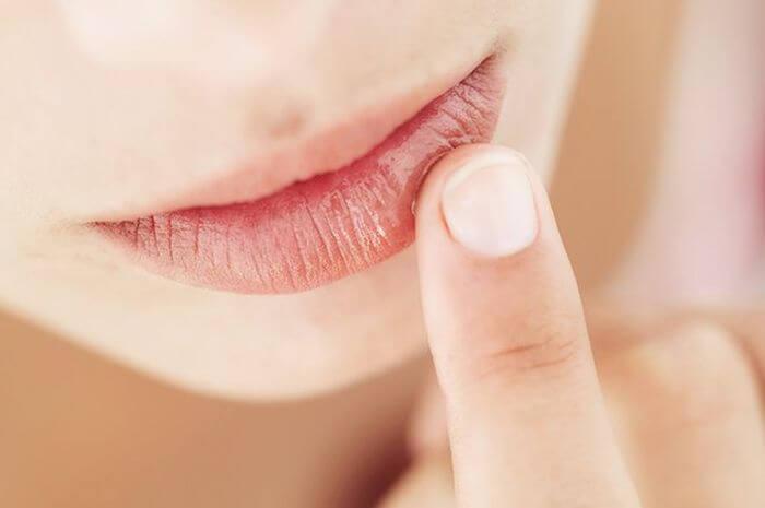 6 Cara Cepat Mengatasi Bibir Kering