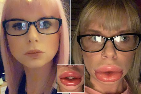 Mum's lip filler left her with 'sausage lips so bad that they made companion debilitated'