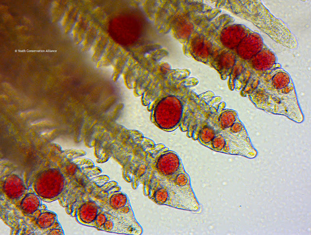 Unhealthy muskie fish gill showing blood clotting under the microscope at 1000x.