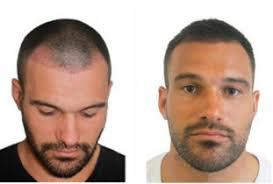 saç ektirme 3