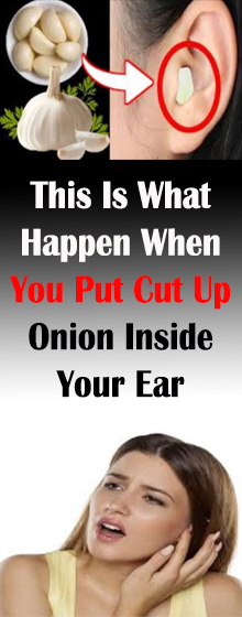 This Is What Happen When You Put Cut Up Onion Inside Your Ear #HealthMedical