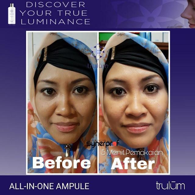 Bebas Bopeng Bekas Jerawat, Flek Hitam Tanpa Harus Laser Atau Ke Tempat Skin Care Di Kelekar Muara Enim