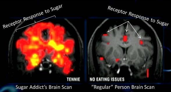 Cara Gula Menghancurkan Otak