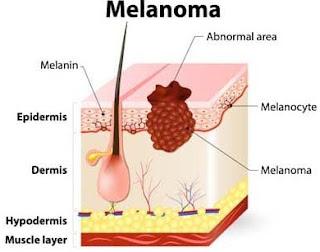 manfaat daun kenikir untuk melanoma