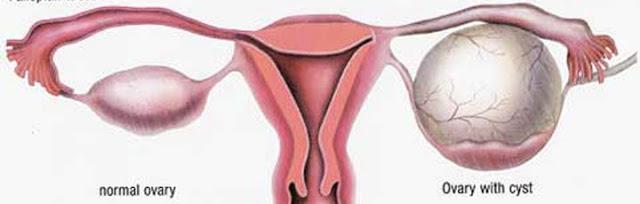 Laporan Pendahulan Kista Ovarium Kista Ovarii Pdf Doc