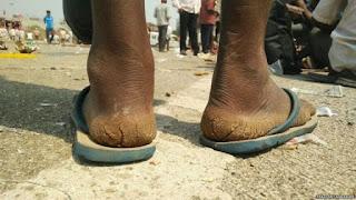 किसानो के पैर हुए पत्थर