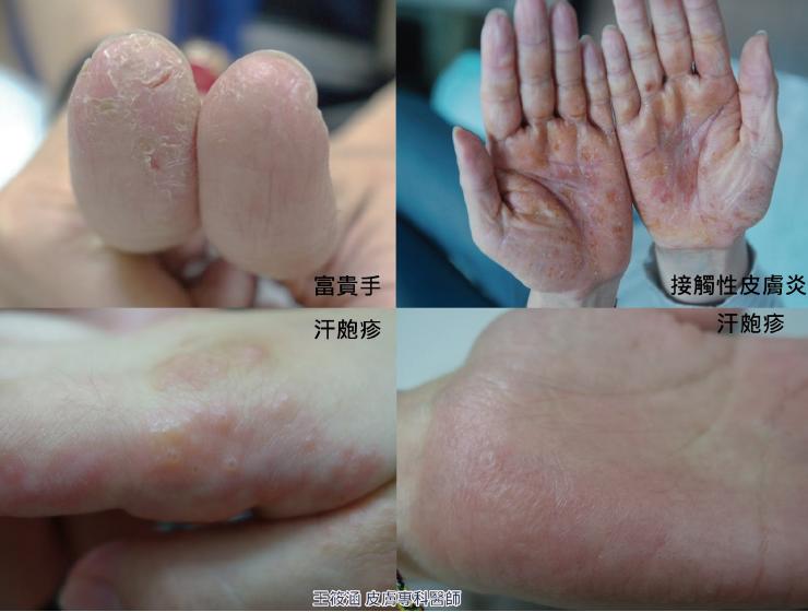 手部濕疹的表現:汗皰疹、富貴手、皮膚炎