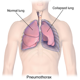 Prepare for Medical Exams : Pneumothorax - Long case study With