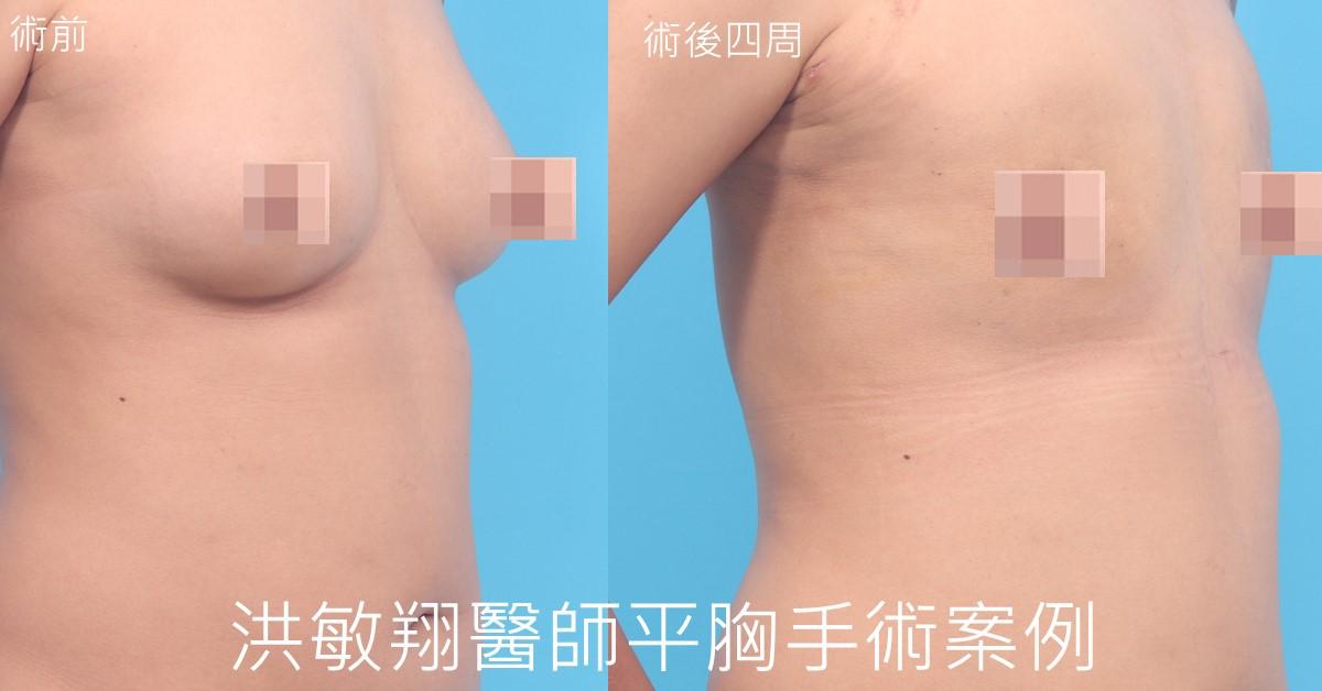 台中平胸手術