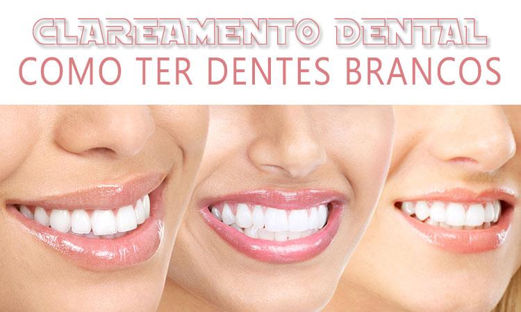 dentes brancos, clarear os dentes, truque para dentes brancos