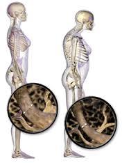 Cara ampuh terapi pengobatan osteoporosis
