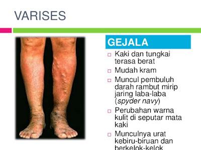 Cara menghilangkan varises di kaki secara alami