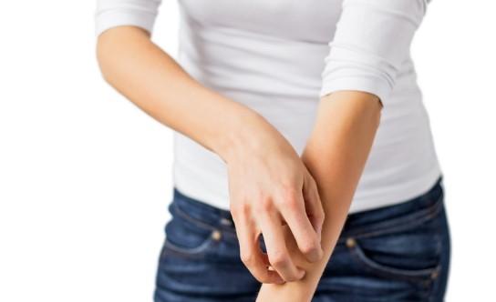 Beberapa Penyebab Mengapa Kulit Bisa Gatal-Gatal